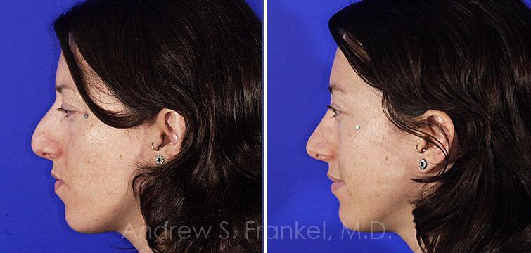 Rhinoplasty before and after photos in Beverly Hills, CA, Patient 7384