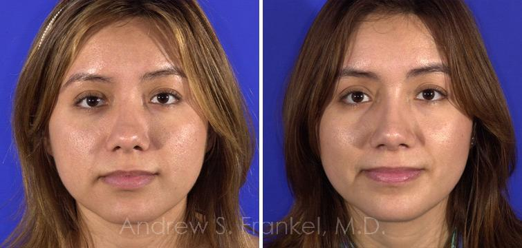 Rhinoplasty before and after photos in Beverly Hills, CA, Patient 7410