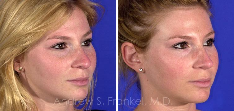 Rhinoplasty before and after photos in Beverly Hills, CA, Patient 7460