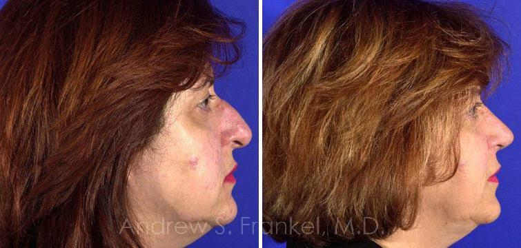 Rhinoplasty before and after photos in Beverly Hills, CA, Patient 7132