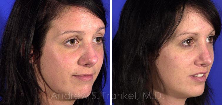 Revision Rhinoplasty before and after photos in Beverly Hills, CA, Patient 7788