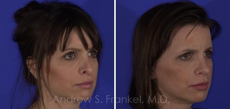 Revision Rhinoplasty before and after photos in Beverly Hills, CA, Patient 7951