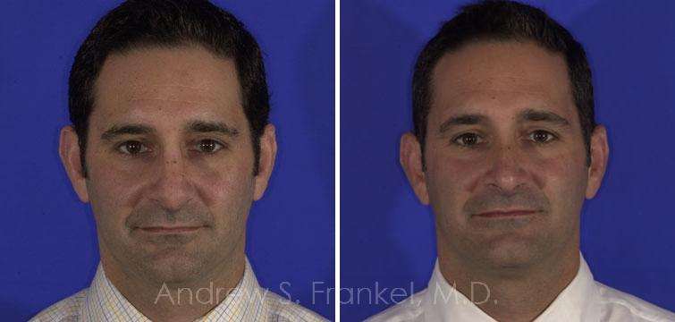 Revision Rhinoplasty before and after photos in Beverly Hills, CA, Patient 7860