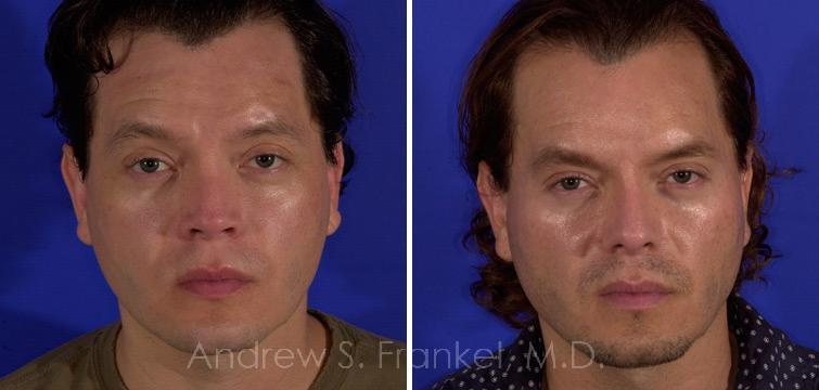 Revision Rhinoplasty before and after photos in Beverly Hills, CA, Patient 7847