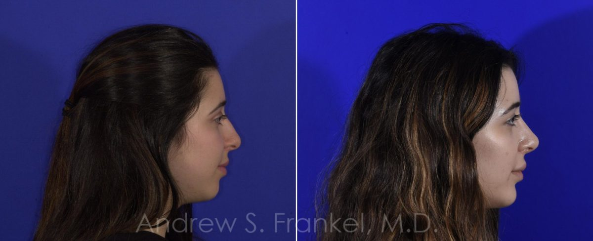 Rhinoplasty before and after photos in Beverly Hills, CA, Patient 9505
