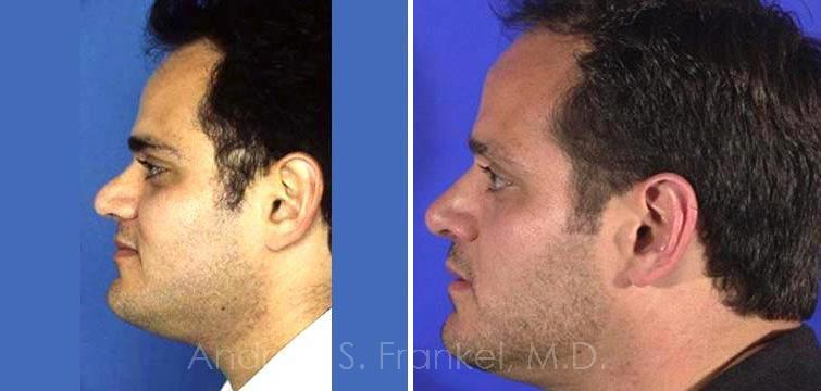 Rhinoplasty before and after photos in Beverly Hills, CA, Patient 7156