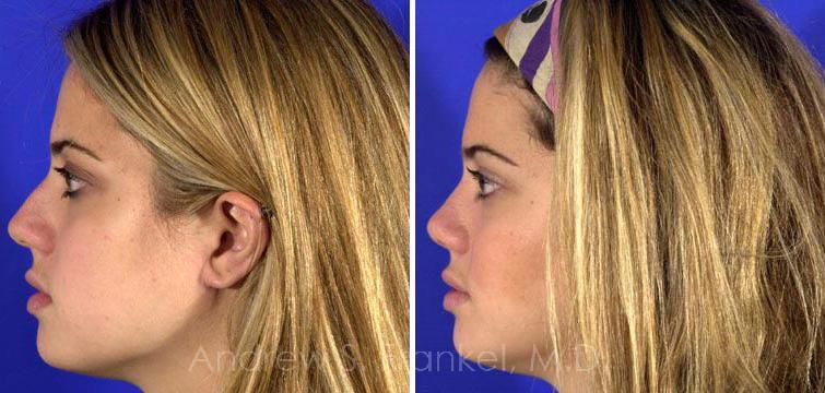 Rhinoplasty before and after photos in Beverly Hills, CA, Patient 7225