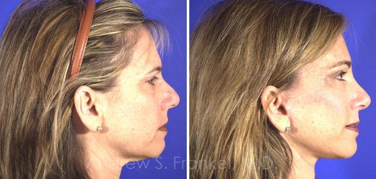 Rhinoplasty before and after photos in Beverly Hills, CA, Patient 7312