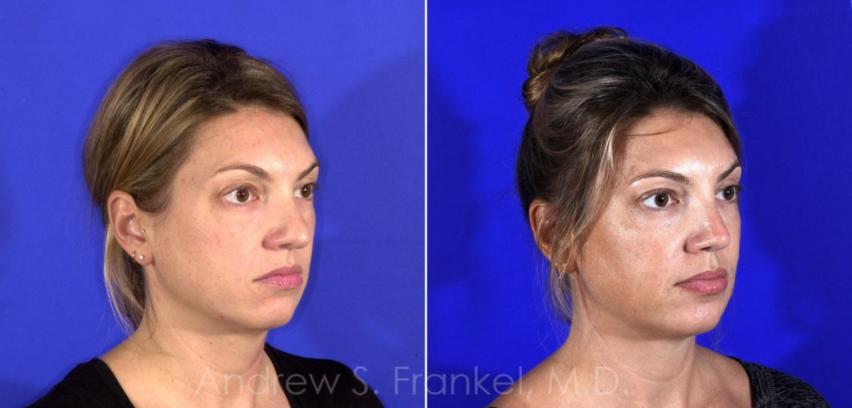 Revision Rhinoplasty before and after photos in Beverly Hills, CA, Patient 9590