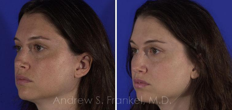 Revision Rhinoplasty before and after photos in Beverly Hills, CA, Patient 7912