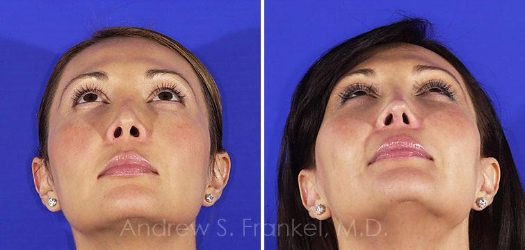 Revision Rhinoplasty before and after photos in Beverly Hills, CA, Patient 7823