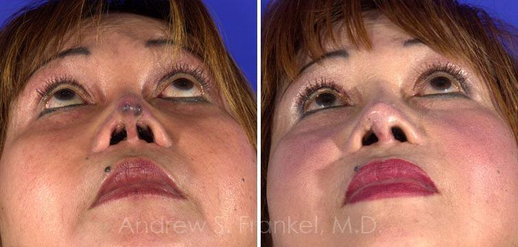 Revision Rhinoplasty before and after photos in Beverly Hills, CA, Patient 7723