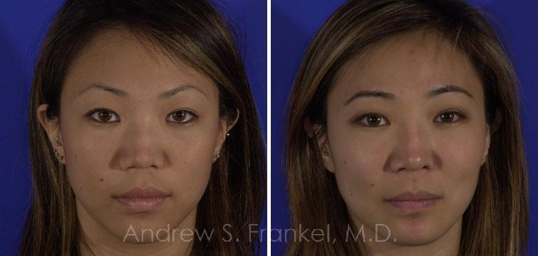 Revision Rhinoplasty before and after photos in Beverly Hills, CA, Patient 7899
